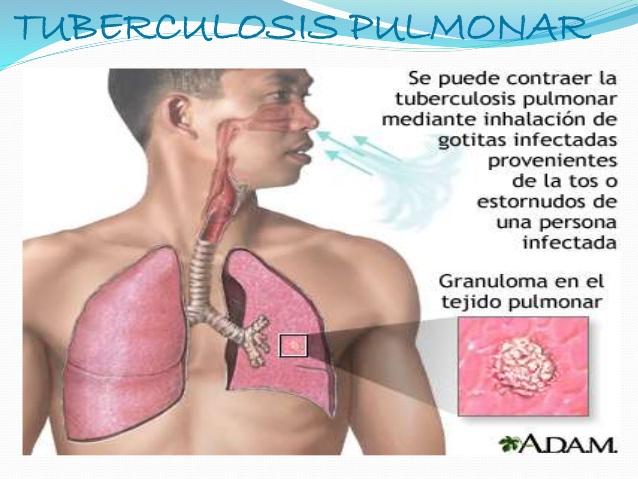 HOY  DÍA MUNDIAL DE LA TUBERCULOSIS; ENFERMEDAD QUE SE PUEDE TRATAR Y CURAR